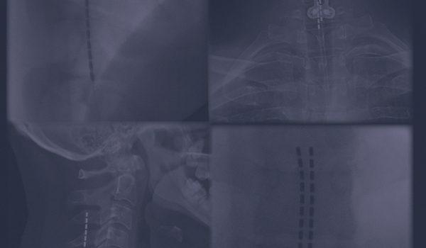 Pain_x-rays